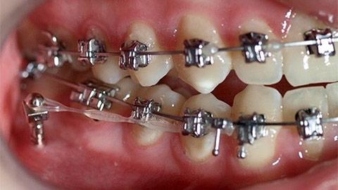 """Mikroimplanty – szkolenie praktyczne<br> <span style=""""font-weight: 300;"""">5 listopada 2021r. GDYNIA</span>"""
